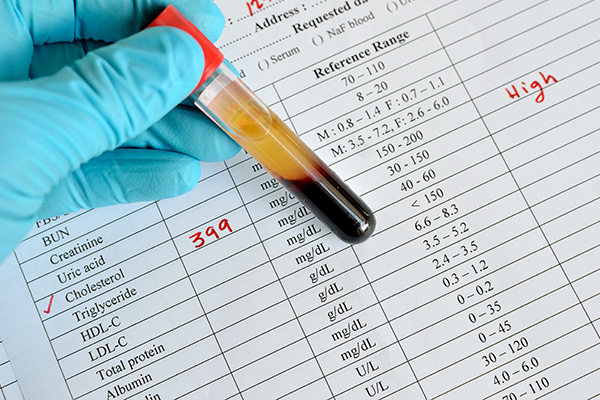 好的膽固醇(HDL)超高標,非心血管疾病死亡風險增!