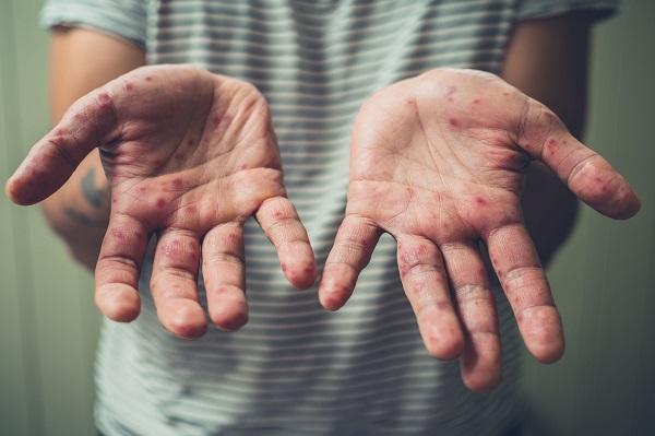皮膚科醫師教您看手相、保健康